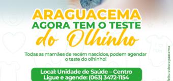 ARAGUACEMA AGORA TEM TESTE DO OLHINHO!